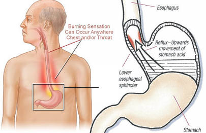 stomach-acid-asthma